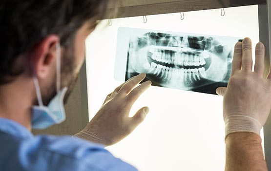 X-Ray For Wisdom Tooth Extraction